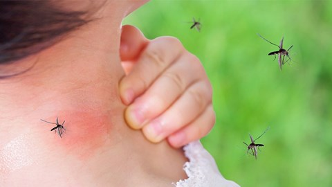 How to Ensure Mosquito Free Surroundings? Tips & Hacks to Protect Yourself from Mosquito Bites